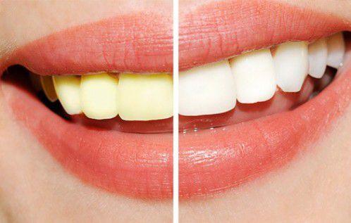 Cách làm trắng răng tại nhà từ baking soda