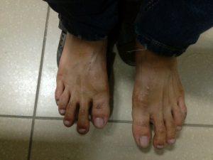 Ra mồ hôi tay chân khi trời lạnh